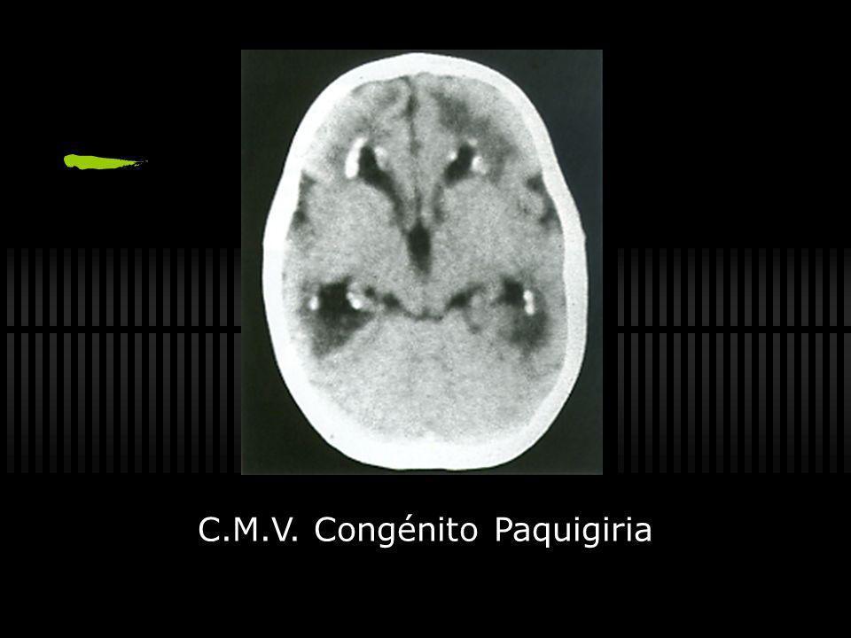 Toxoplasmosis Congénita