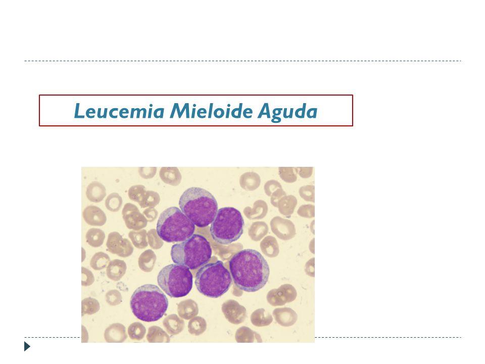 Leucemia Mieloide Aguda