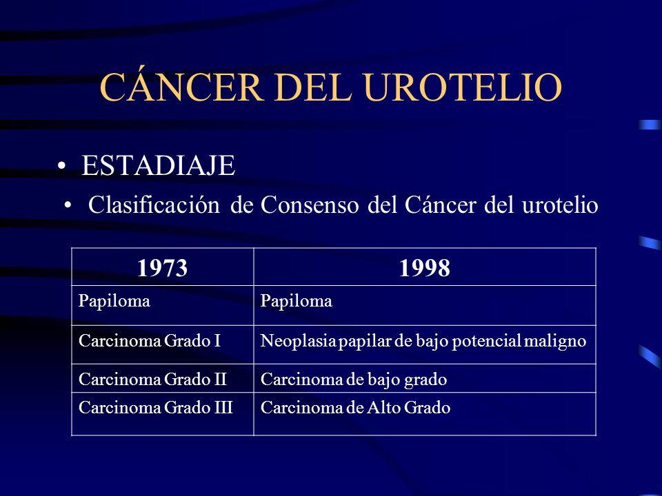 CÁNCER DEL UROTELIO ESTADIAJE Clasificación de Consenso del Cáncer del urotelio 19731998 Papiloma Carcinoma Grado INeoplasia papilar de bajo potencial