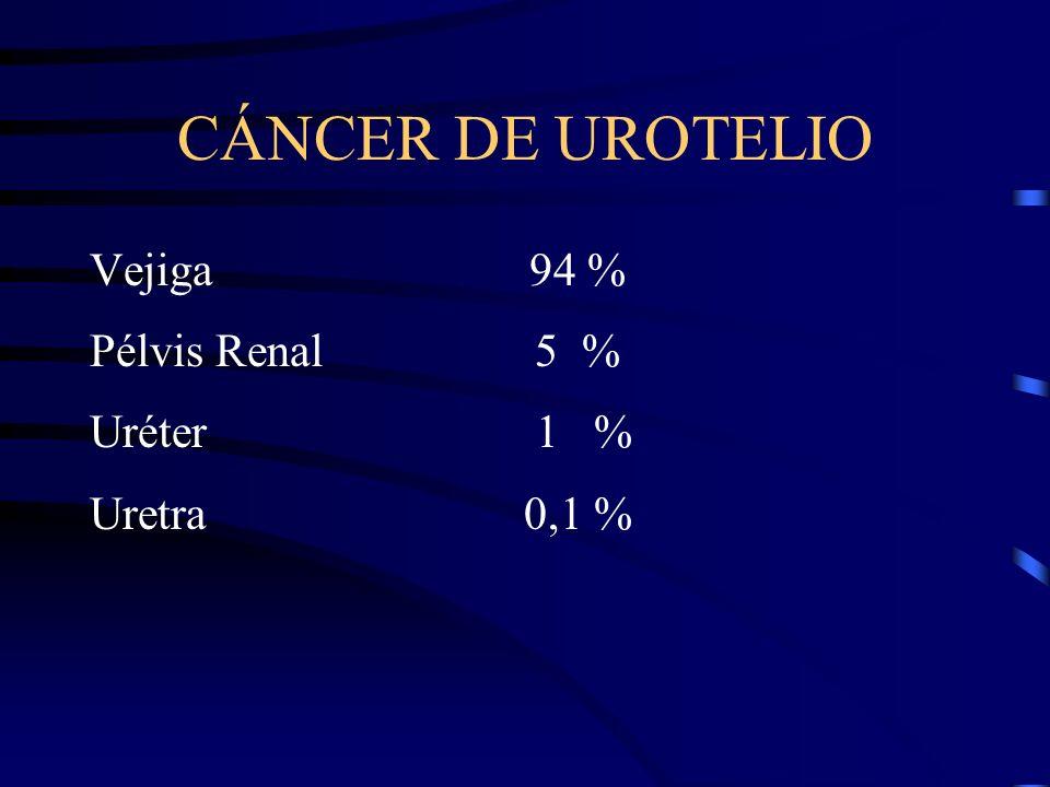 CÁNCER DE UROTELIO Vejiga 94 % Pélvis Renal 5 % Uréter 1 % Uretra 0,1 %