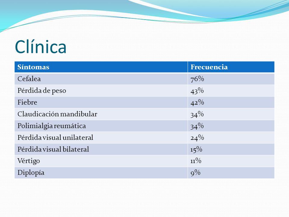Clínica SíntomasFrecuencia Cefalea76% Pérdida de peso43% Fiebre42% Claudicación mandibular34% Polimialgia reumática34% Pérdida visual unilateral24% Pé