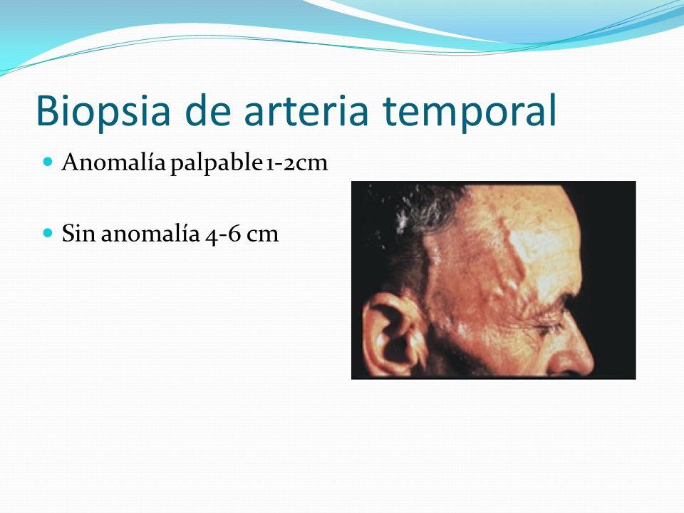 Biopsia de arteria temporal Anomalía palpable 1-2cm Sin anomalía 4-6 cm