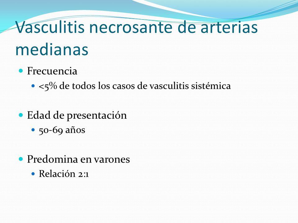 Vasculitis necrosante de arterias medianas Frecuencia <5% de todos los casos de vasculitis sistémica Edad de presentación 50-69 años Predomina en varo