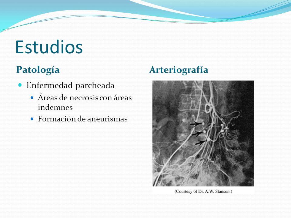Estudios Patología Arteriografía Enfermedad parcheada Áreas de necrosis con áreas indemnes Formación de aneurismas