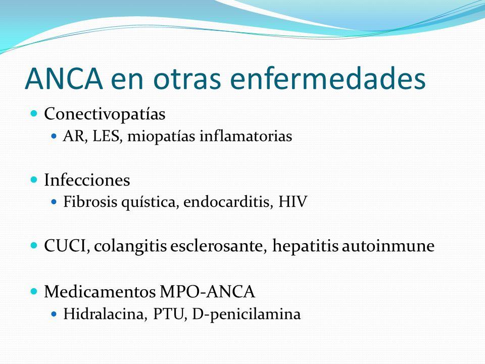 ANCA en otras enfermedades Conectivopatías AR, LES, miopatías inflamatorias Infecciones Fibrosis quística, endocarditis, HIV CUCI, colangitis escleros