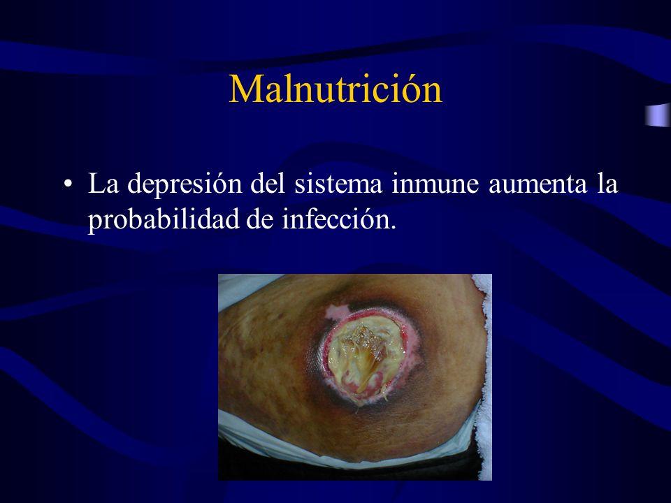 Malnutrición La depresión del sistema inmune aumenta la probabilidad de infección.