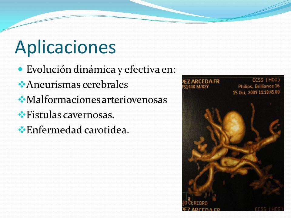 Aplicaciones Evolución dinámica y efectiva en: Aneurismas cerebrales Malformaciones arteriovenosas Fistulas cavernosas. Enfermedad carotidea.