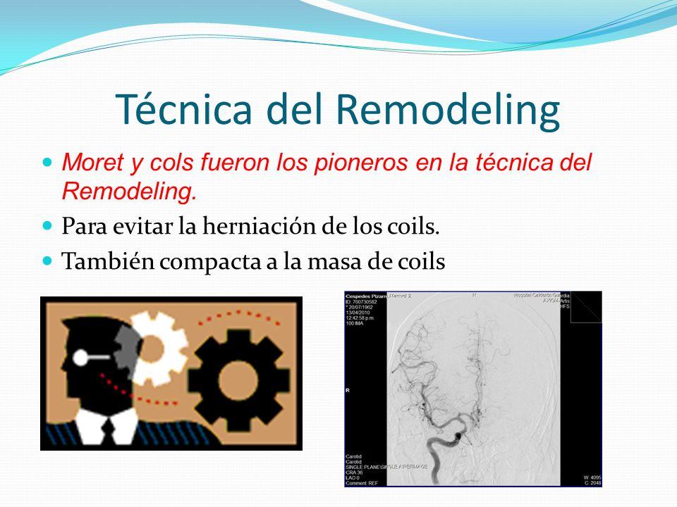 Técnica del Remodeling Moret y cols fueron los pioneros en la técnica del Remodeling. Para evitar la herniación de los coils. También compacta a la ma