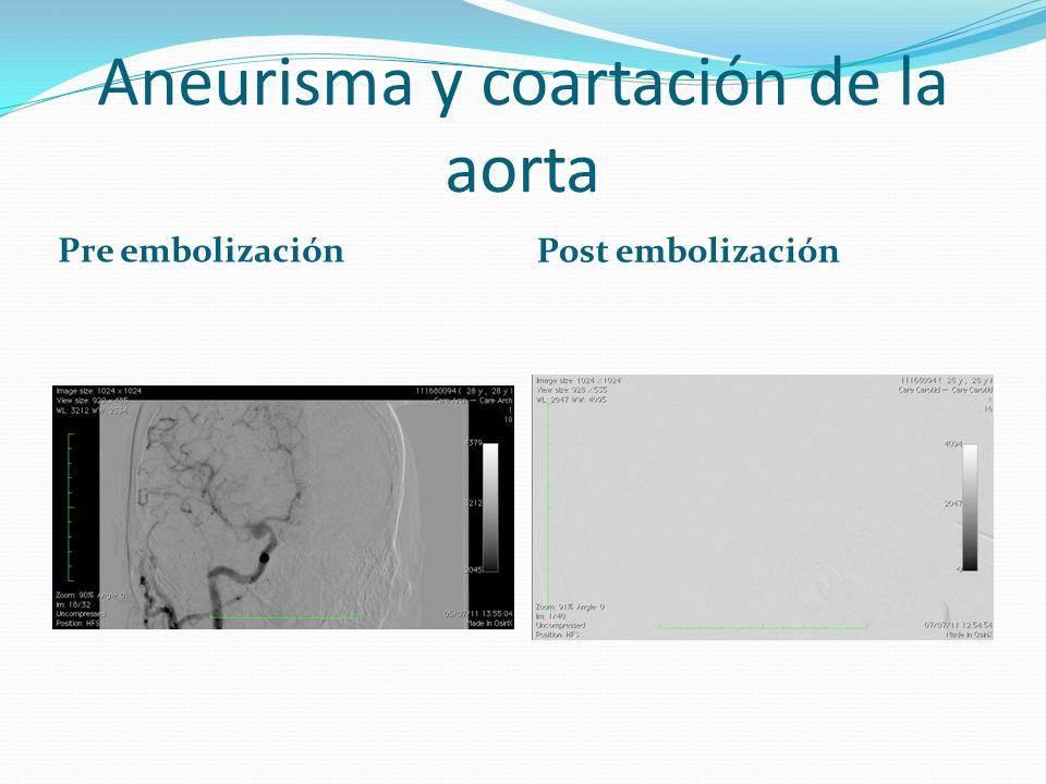 Aneurisma y coartación de la aorta Pre embolización Post embolización