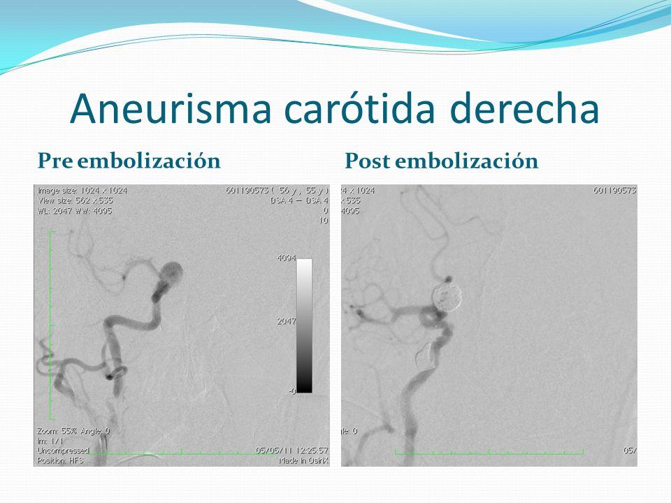Aneurisma carótida derecha Pre embolización Post embolización