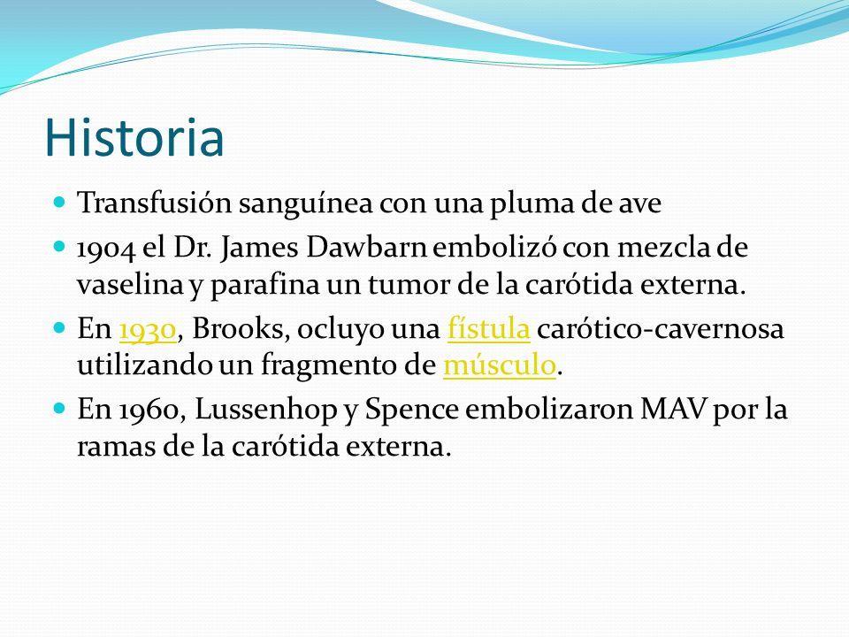 Historia Transfusión sanguínea con una pluma de ave 1904 el Dr. James Dawbarn embolizó con mezcla de vaselina y parafina un tumor de la carótida exter