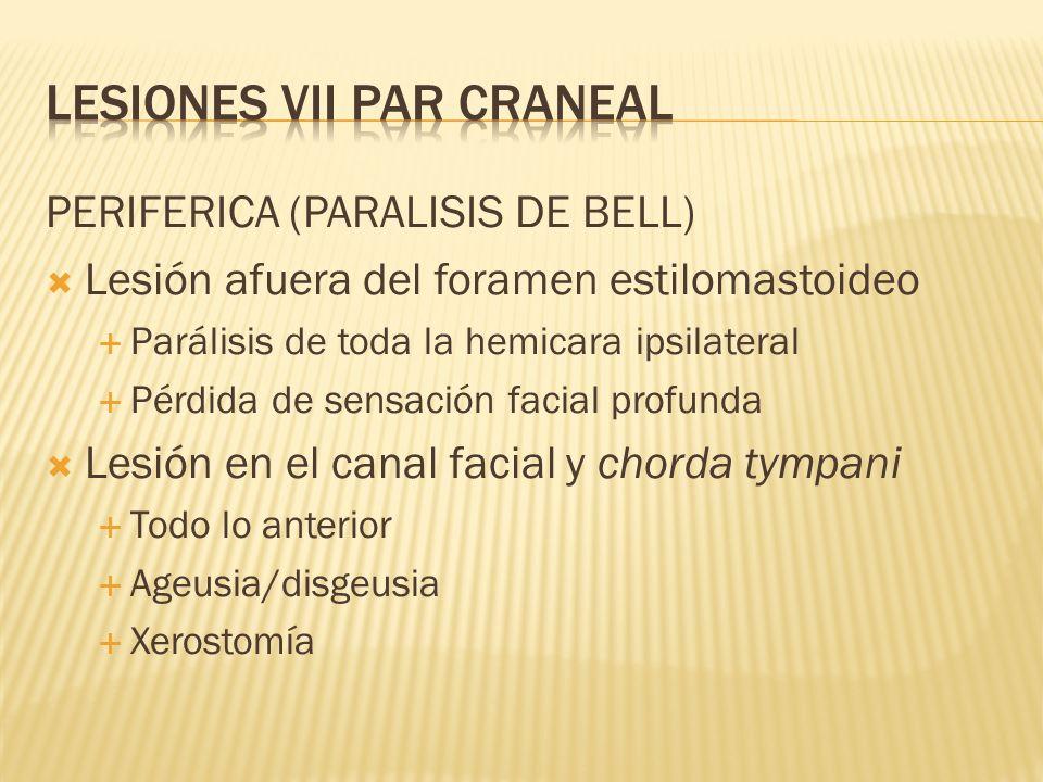 PERIFERICA (PARALISIS DE BELL) Lesión afuera del foramen estilomastoideo Parálisis de toda la hemicara ipsilateral Pérdida de sensación facial profund