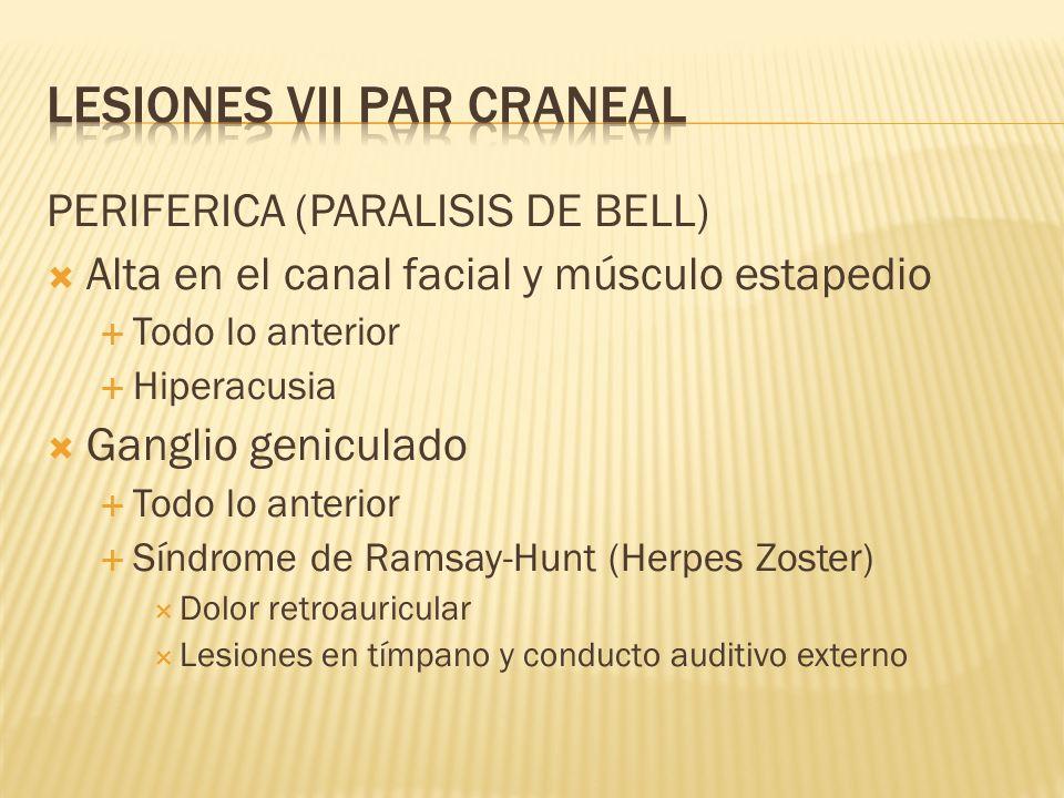PERIFERICA (PARALISIS DE BELL) Alta en el canal facial y músculo estapedio Todo lo anterior Hiperacusia Ganglio geniculado Todo lo anterior Síndrome d