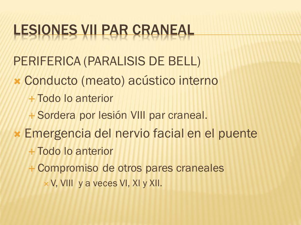 PERIFERICA (PARALISIS DE BELL) Conducto (meato) acústico interno Todo lo anterior Sordera por lesión VIII par craneal. Emergencia del nervio facial en