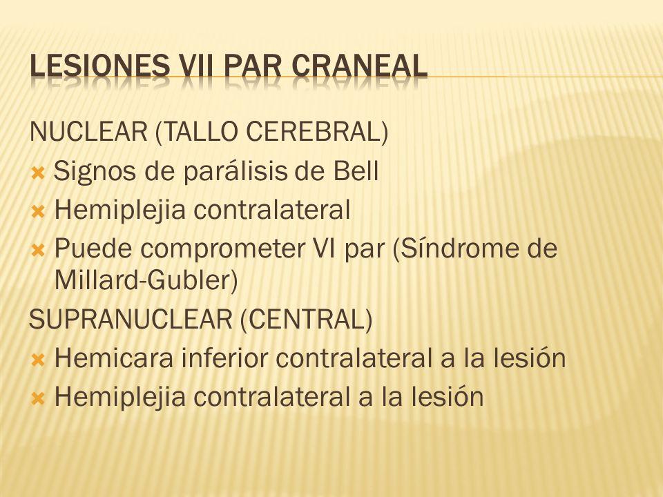 NUCLEAR (TALLO CEREBRAL) Signos de parálisis de Bell Hemiplejia contralateral Puede comprometer VI par (Síndrome de Millard-Gubler) SUPRANUCLEAR (CENT