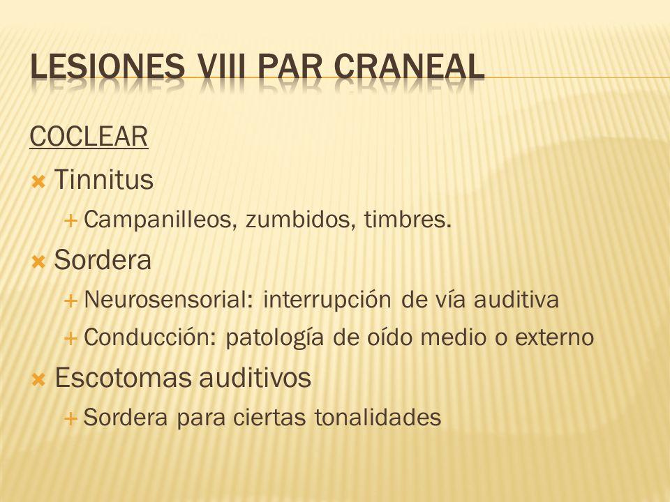 COCLEAR Tinnitus Campanilleos, zumbidos, timbres. Sordera Neurosensorial: interrupción de vía auditiva Conducción: patología de oído medio o externo E