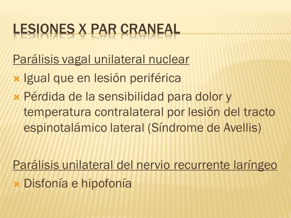 Parálisis vagal unilateral nuclear Igual que en lesión periférica Pérdida de la sensibilidad para dolor y temperatura contralateral por lesión del tra