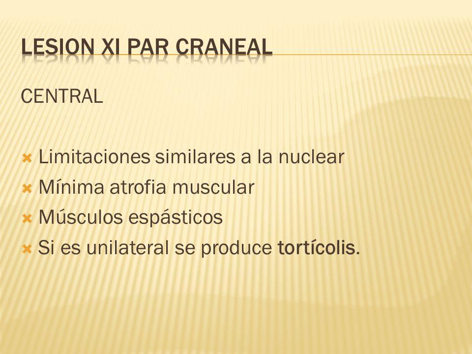 CENTRAL Limitaciones similares a la nuclear Mínima atrofia muscular Músculos espásticos Si es unilateral se produce tortícolis.
