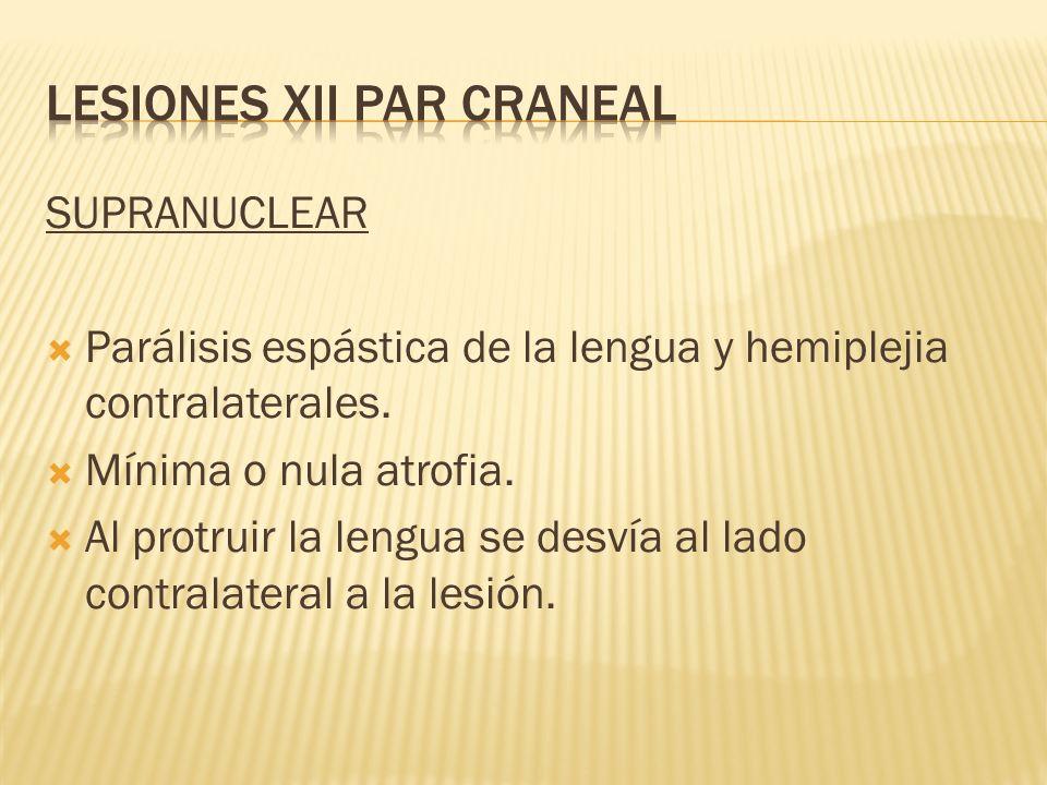 SUPRANUCLEAR Parálisis espástica de la lengua y hemiplejia contralaterales. Mínima o nula atrofia. Al protruir la lengua se desvía al lado contralater