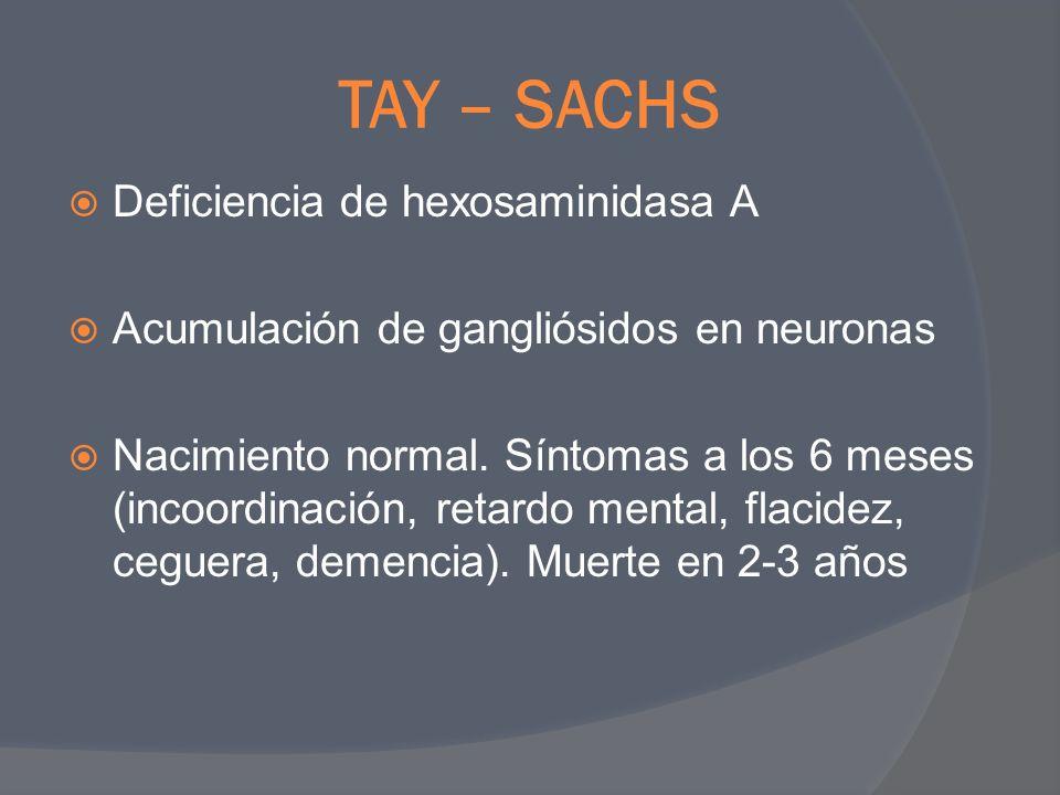 TAY – SACHS Deficiencia de hexosaminidasa A Acumulación de gangliósidos en neuronas Nacimiento normal. Síntomas a los 6 meses (incoordinación, retardo