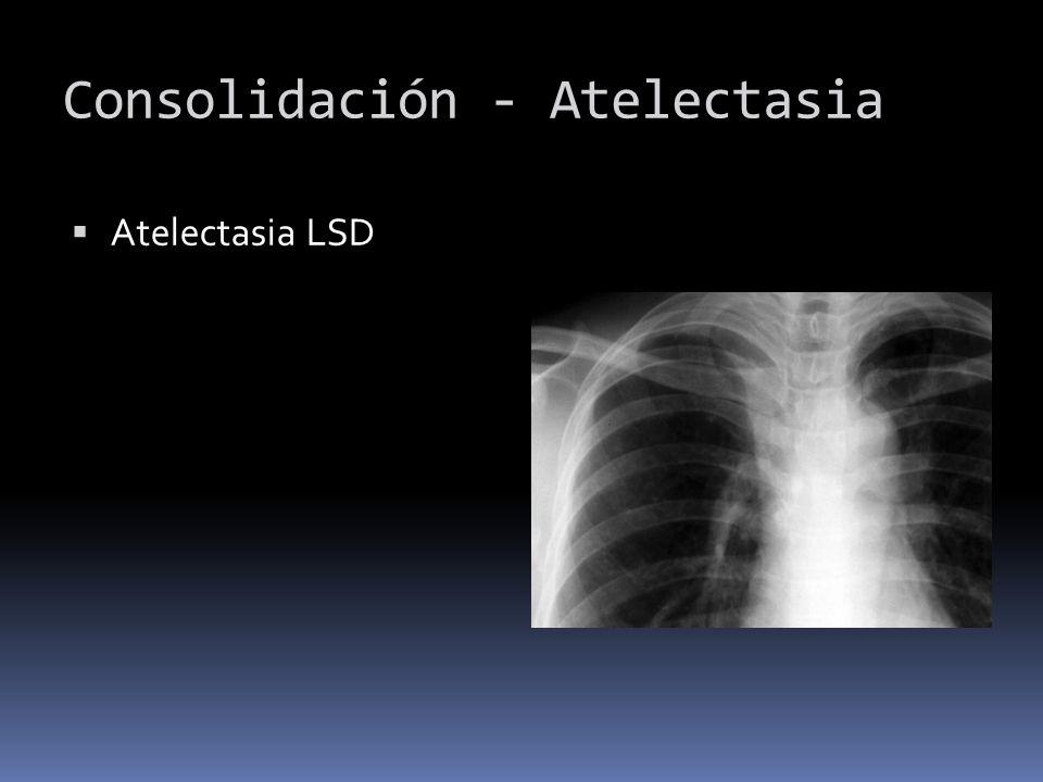 Consolidación - Atelectasia Atelectasia LSD