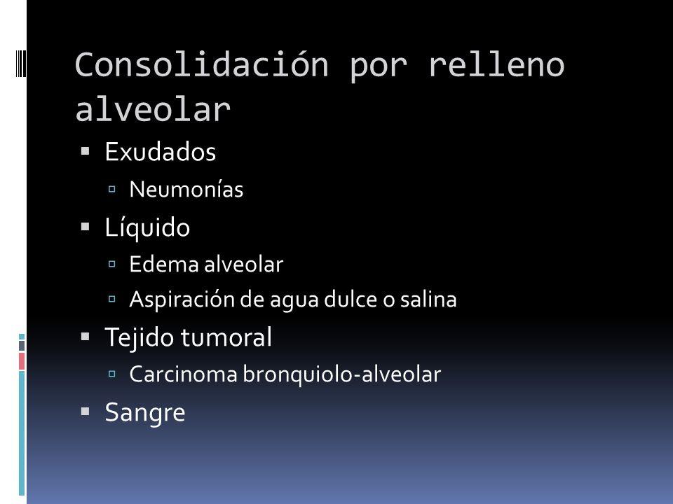 Consolidación por relleno alveolar Exudados Neumonías Líquido Edema alveolar Aspiración de agua dulce o salina Tejido tumoral Carcinoma bronquiolo-alv