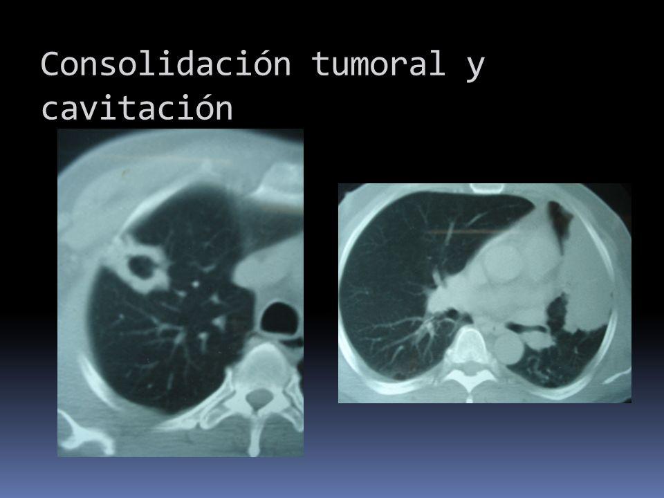 Consolidación tumoral y cavitación