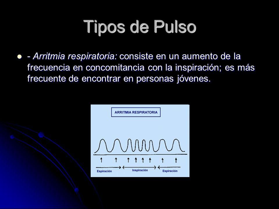 Tipos de Pulso - Arritmia respiratoria: consiste en un aumento de la frecuencia en concomitancia con la inspiración; es más frecuente de encontrar en