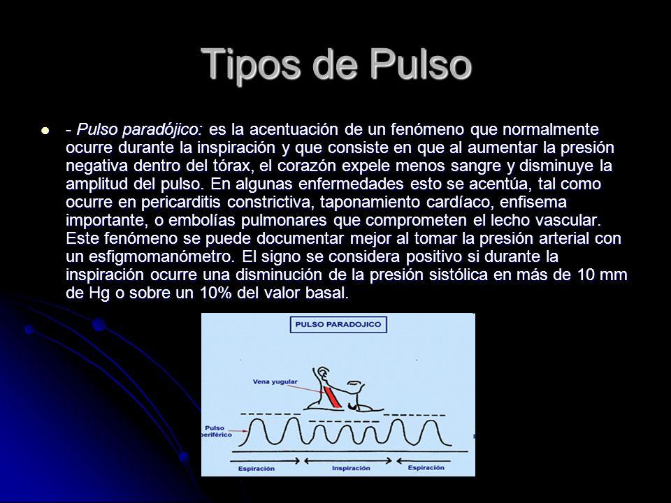 Tipos de Pulso - Pulso paradójico: es la acentuación de un fenómeno que normalmente ocurre durante la inspiración y que consiste en que al aumentar la