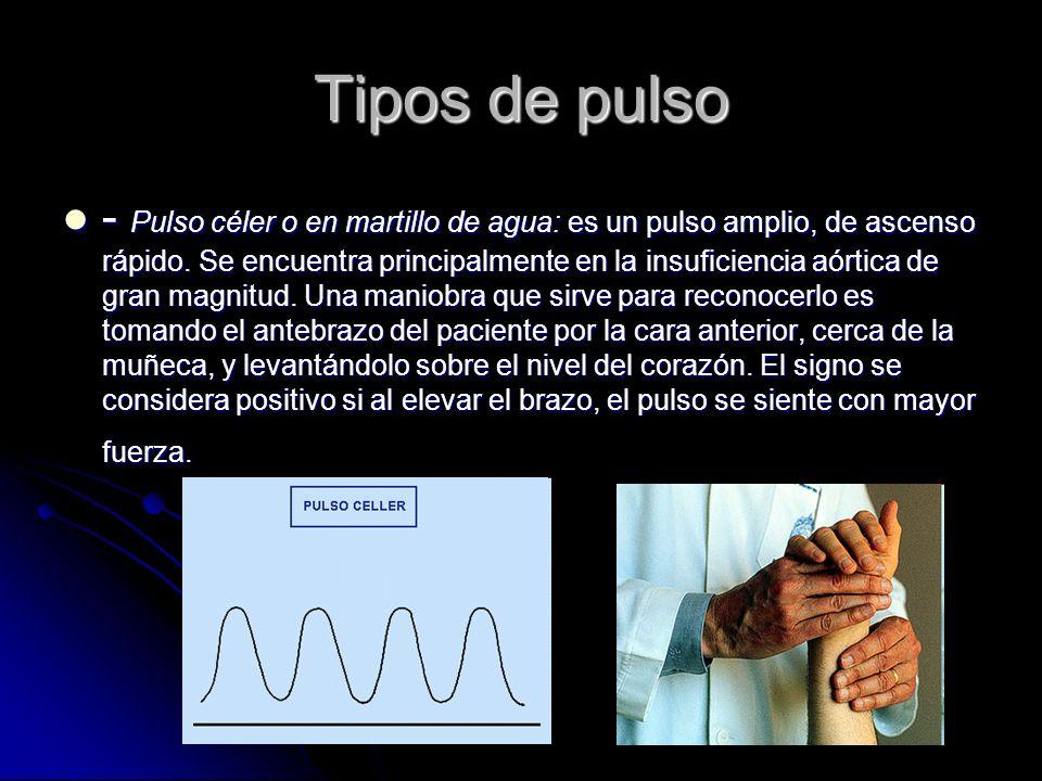 Tipos de pulso - Pulso céler o en martillo de agua: es un pulso amplio, de ascenso rápido. Se encuentra principalmente en la insuficiencia aórtica de