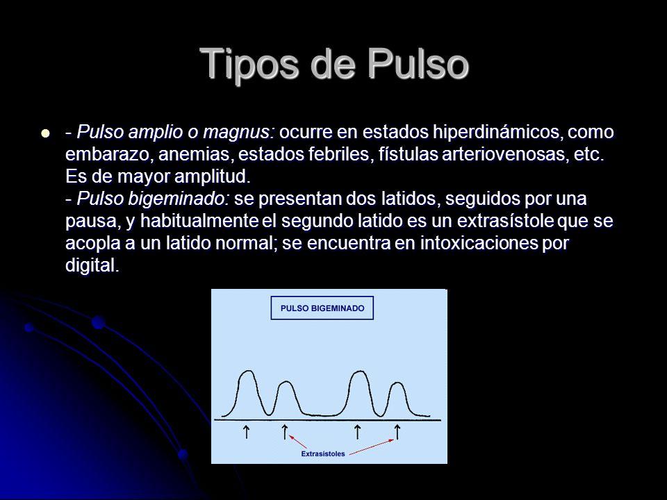 Tipos de Pulso - Arritmia completa: se caracteriza porque el pulso es irregular en todo sentido, tanto en la frecuencia como en la amplitud, tal como ocurre en la fibrilación auricular que es la causa más frecuente.