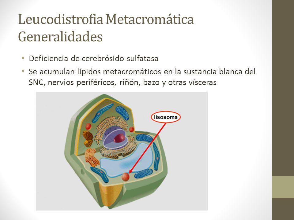 Leucodistrofia Metacromática Generalidades Deficiencia de cerebrósido-sulfatasa Se acumulan lípidos metacromáticos en la sustancia blanca del SNC, ner