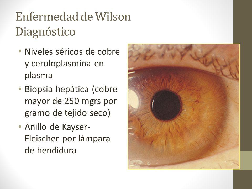 Enfermedad de Wilson Diagnóstico Niveles séricos de cobre y ceruloplasmina en plasma Biopsia hepática (cobre mayor de 250 mgrs por gramo de tejido sec