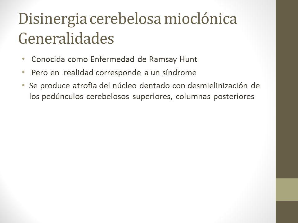Disinergia cerebelosa mioclónica Generalidades Conocida como Enfermedad de Ramsay Hunt Pero en realidad corresponde a un síndrome Se produce atrofia d