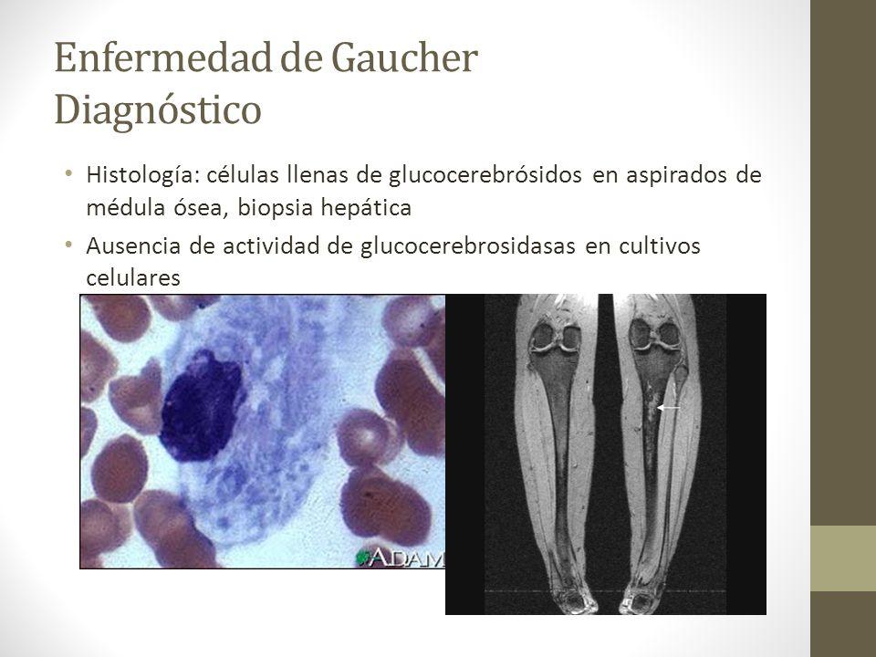 Enfermedad de Gaucher Diagnóstico Histología: células llenas de glucocerebrósidos en aspirados de médula ósea, biopsia hepática Ausencia de actividad