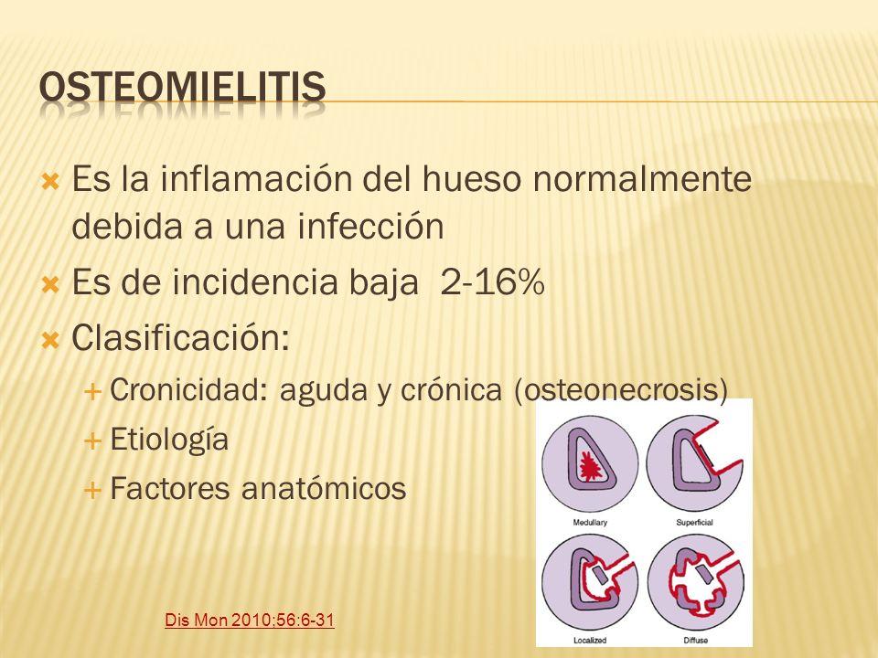 Es la inflamación del hueso normalmente debida a una infección Es de incidencia baja 2-16% Clasificación: Cronicidad: aguda y crónica (osteonecrosis)