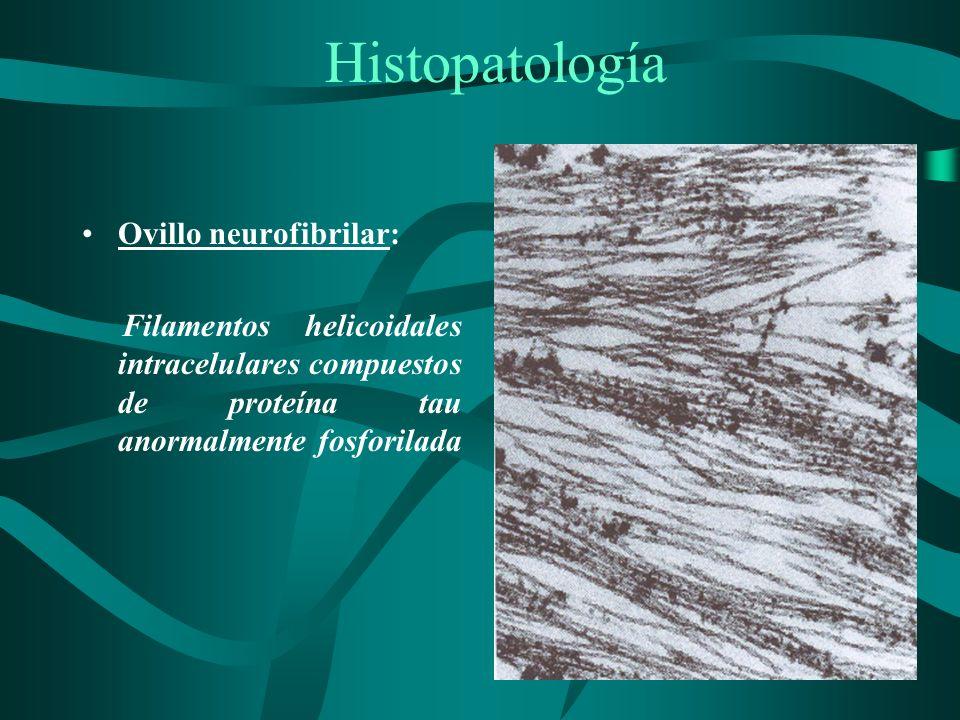 Histopatología Ovillo neurofibrilar: Filamentos helicoidales intracelulares compuestos de proteína tau anormalmente fosforilada