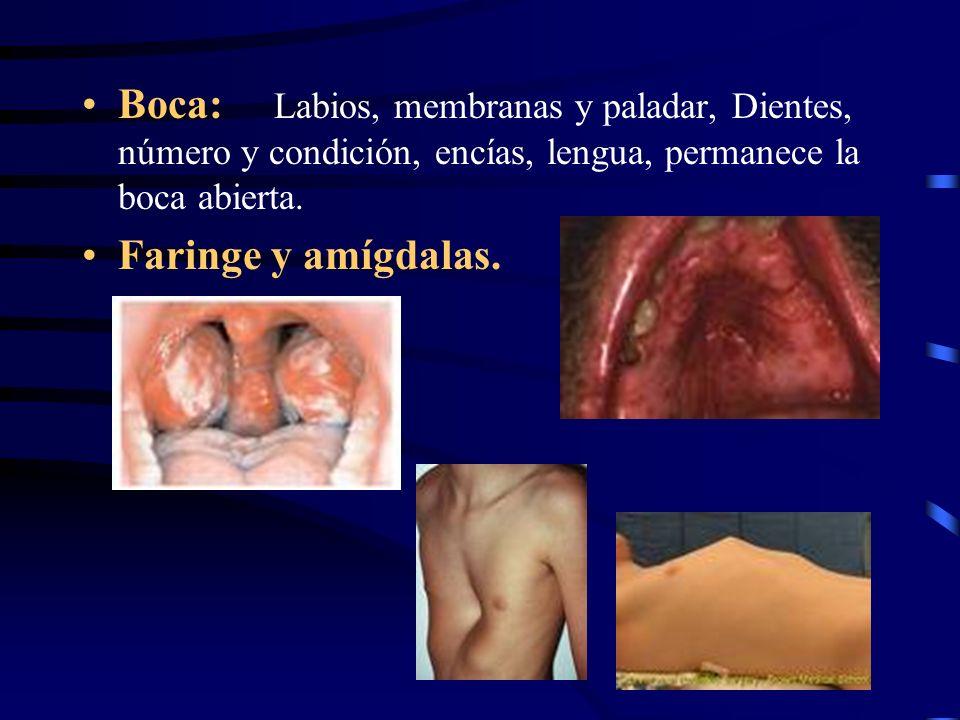 Boca: Labios, membranas y paladar, Dientes, número y condición, encías, lengua, permanece la boca abierta. Faringe y amígdalas.