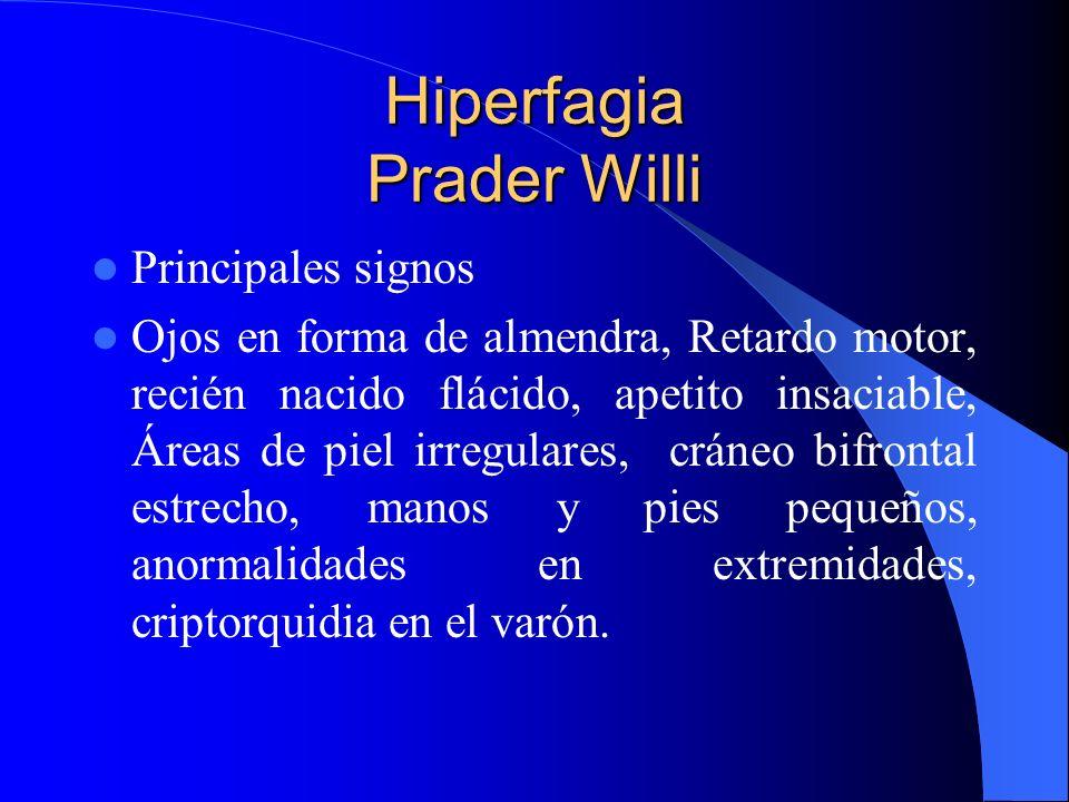 Hiperfagia Prader Willi Principales signos Ojos en forma de almendra, Retardo motor, recién nacido flácido, apetito insaciable, Áreas de piel irregula