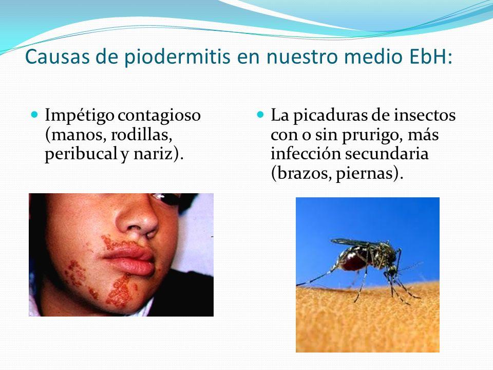 Causas de piodermitis en nuestro medio EbH: Impétigo contagioso (manos, rodillas, peribucal y nariz). La picaduras de insectos con o sin prurigo, más