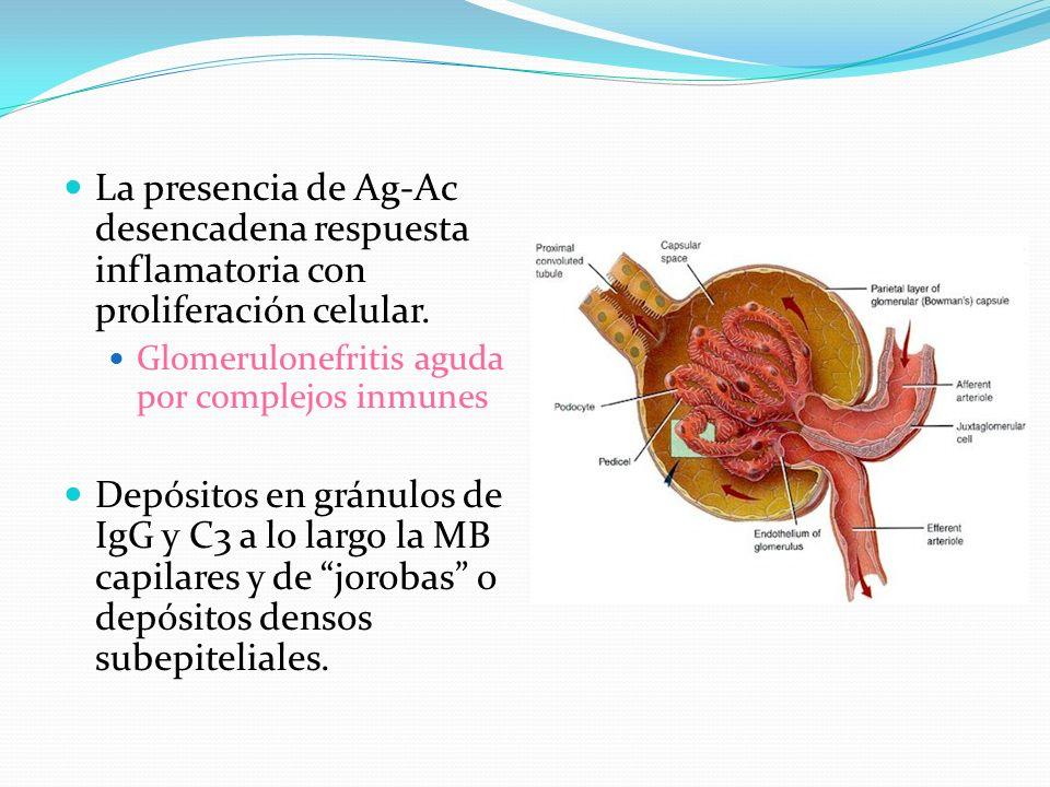 La presencia de Ag-Ac desencadena respuesta inflamatoria con proliferación celular. Glomerulonefritis aguda por complejos inmunes Depósitos en gránulo