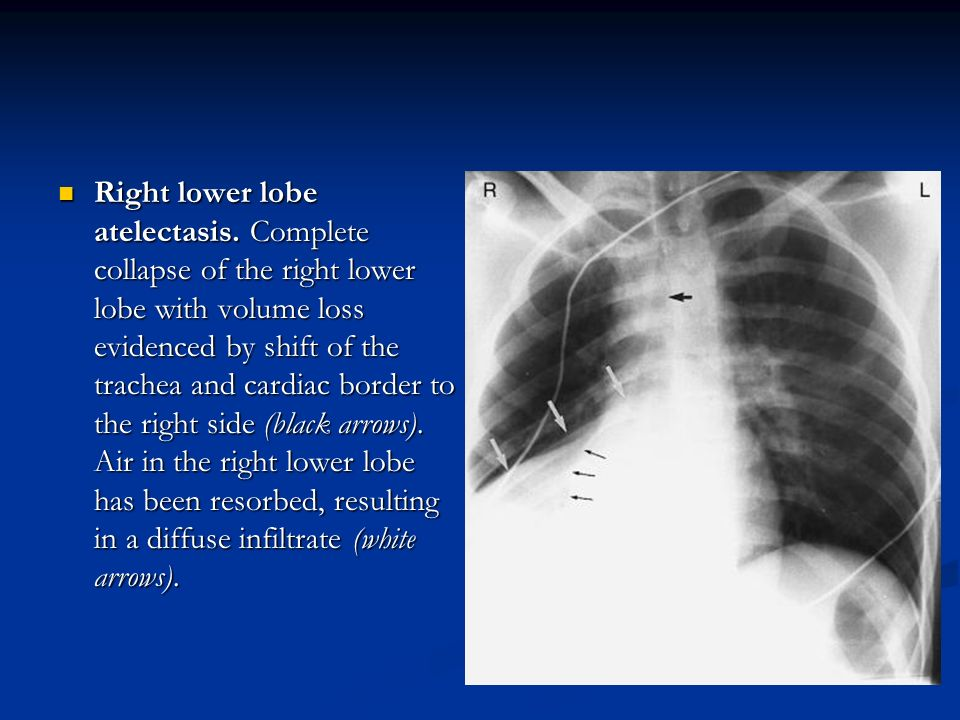 Right lower lobe atelectasis. Complete collapse of the right lower lobe with volume loss evidenced by shift of the trachea and cardiac border to the r