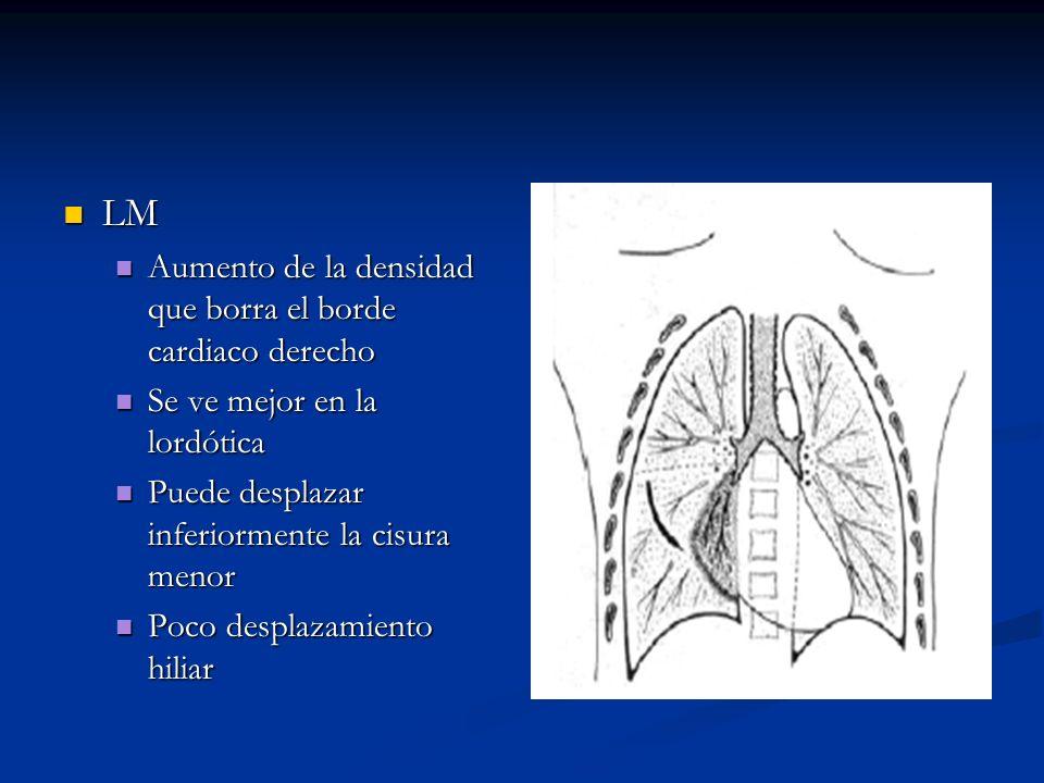 LM LM Aumento de la densidad que borra el borde cardiaco derecho Aumento de la densidad que borra el borde cardiaco derecho Se ve mejor en la lordótic