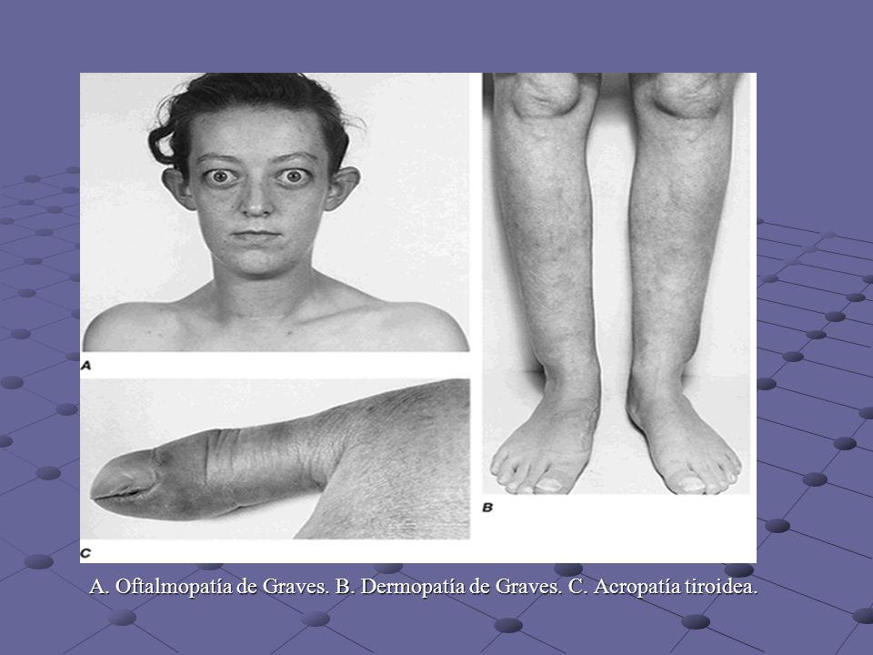 A. Oftalmopatía de Graves. B. Dermopatía de Graves. C. Acropatía tiroidea.