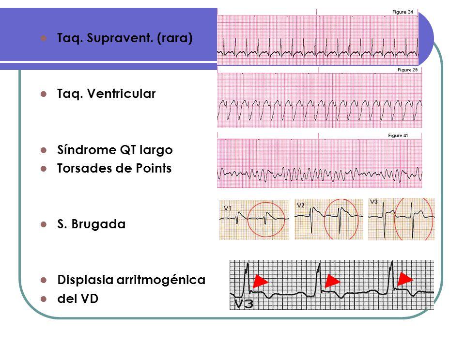 Taq. Supravent. (rara) Taq. Ventricular Síndrome QT largo Torsades de Points S. Brugada Displasia arritmogénica del VD