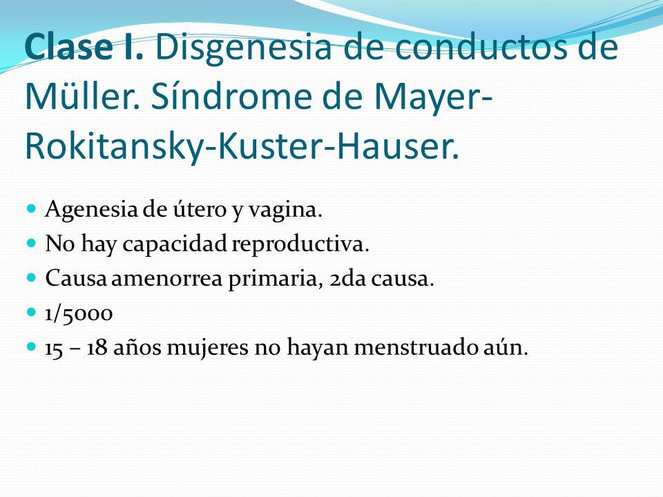 Clase I. Disgenesia de conductos de Müller. Síndrome de Mayer- Rokitansky-Kuster-Hauser. Agenesia de útero y vagina. No hay capacidad reproductiva. Ca