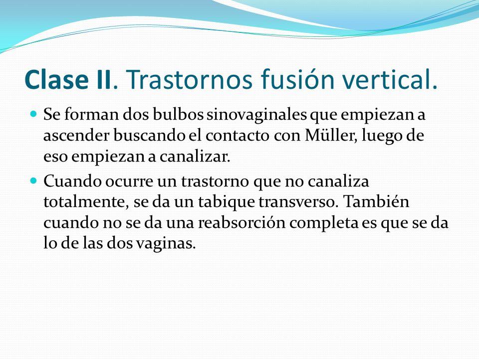 Clase II. Trastornos fusión vertical. Se forman dos bulbos sinovaginales que empiezan a ascender buscando el contacto con Müller, luego de eso empieza