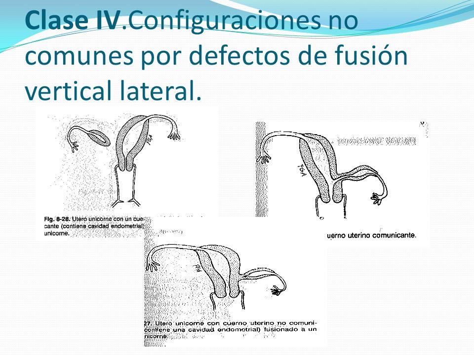 Clase IV.Configuraciones no comunes por defectos de fusión vertical lateral.