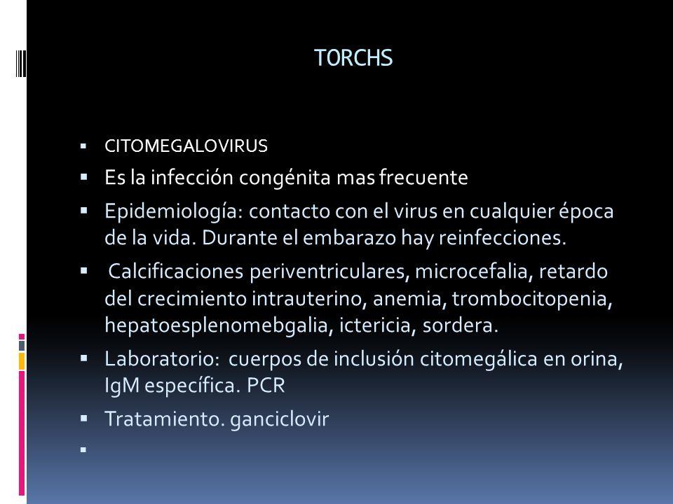 TORCHS CITOMEGALOVIRUS Es la infección congénita mas frecuente Epidemiología: contacto con el virus en cualquier época de la vida. Durante el embarazo