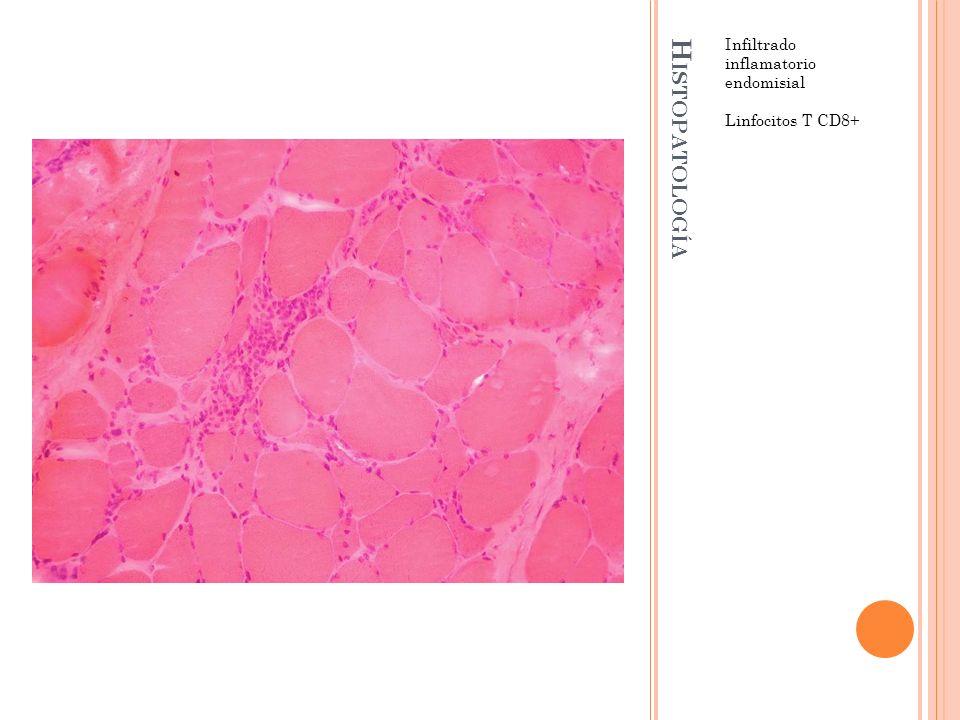 H ISTOPATOLOGÍA Infiltrado inflamatorio endomisial Linfocitos T CD8+
